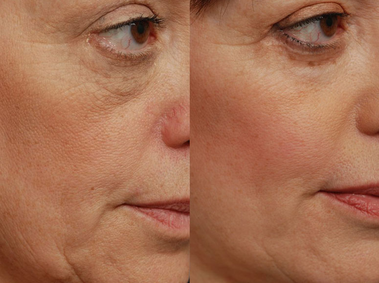 After Cheek Implants