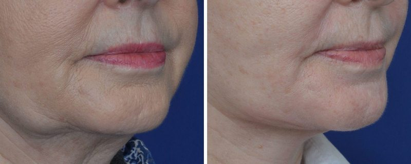 Annapolis Chin Implants Before and After Photo