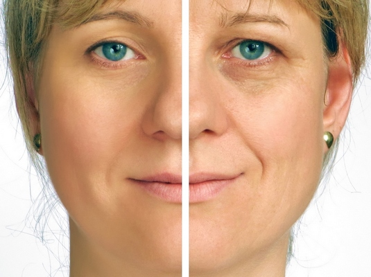 Annapolis Dermal Fillers Before and After Photo