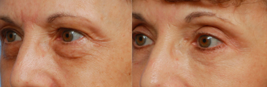 Annapolis Facial Plastic Surgeon for Eyelid Surgery
