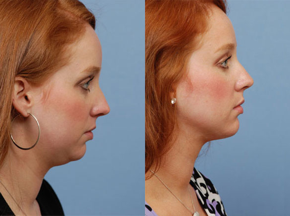 Chin Implant Before & After by Annapolis Plastic Surgeon