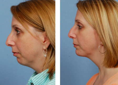 chin-implant