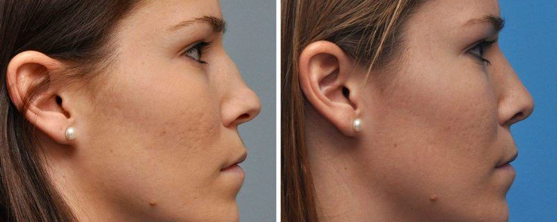 Nose Reshaping Before & After by Annapolis Plastic Surgeon